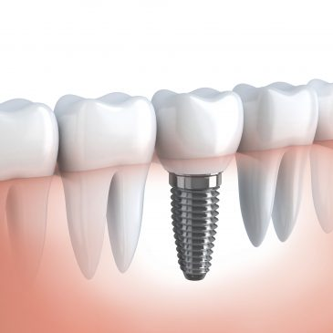 Are Dental Implants Covered by Health Insurance in Houston?